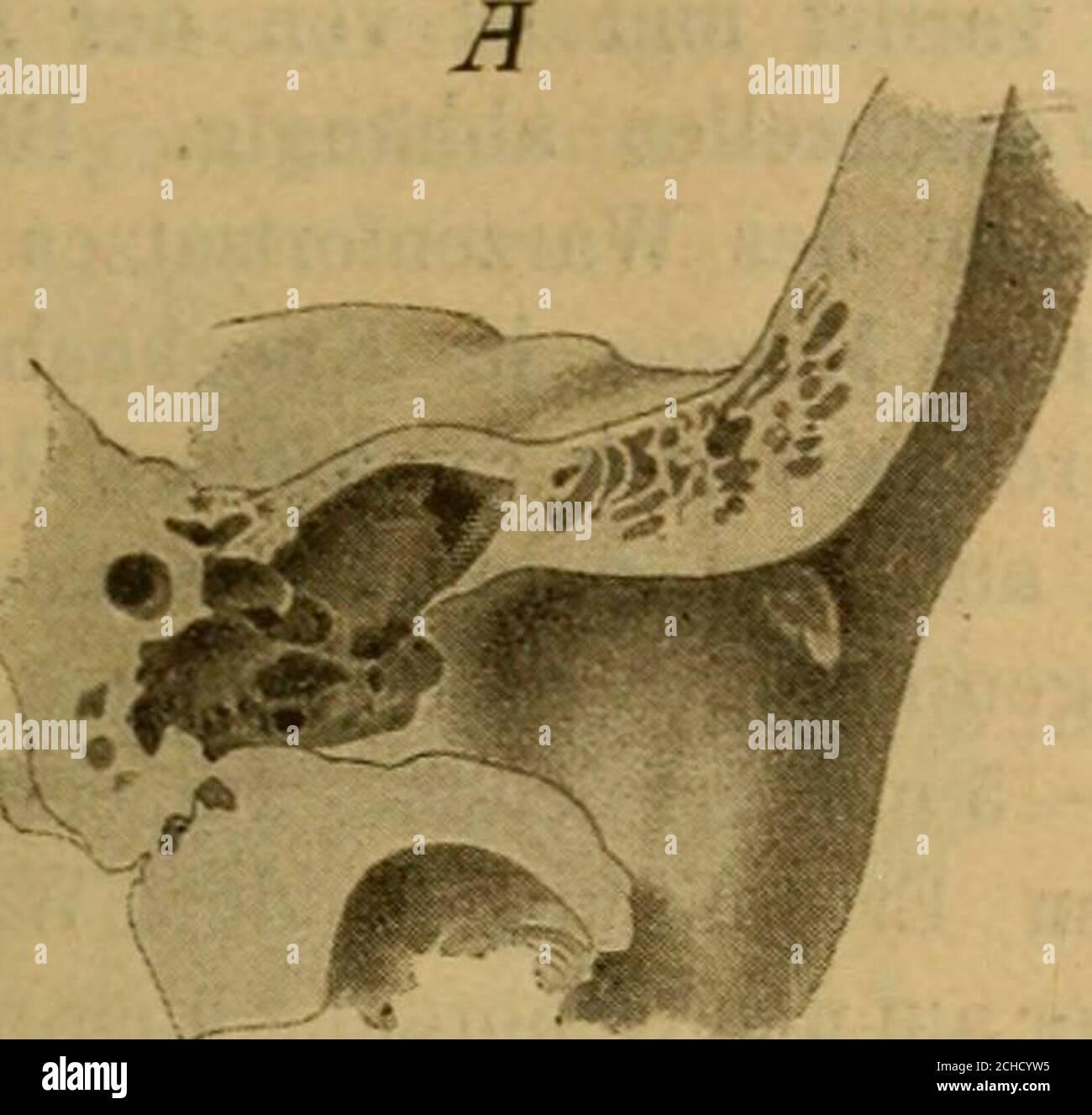 . Handbuch der Ohrenheilkunde . satz beigestellt. Die obere Wand gehört dem horizontalen Theile der Schläfebein-schuppe an und trennt die Gehörgangslichtung von der mittleren Schädel-grube. Sie besteht aus zwei compacten Platten, einer oberen, der Schädel-höhle, und einer unteren, dem Gehörgang zugewendeten, zwischen welchensich als dritte Schichte pneumatische oder diploehaltige Spongiosa ein-schiebt. Die cerebrale Platte ist papierblattdünn, lang, aber schmal, zwischenSchläfebeinschuppe und Tegmen tympani eingeschoben und von diesemtheilweise schuppenartig überlagert, während die dickere unt Stock Photo