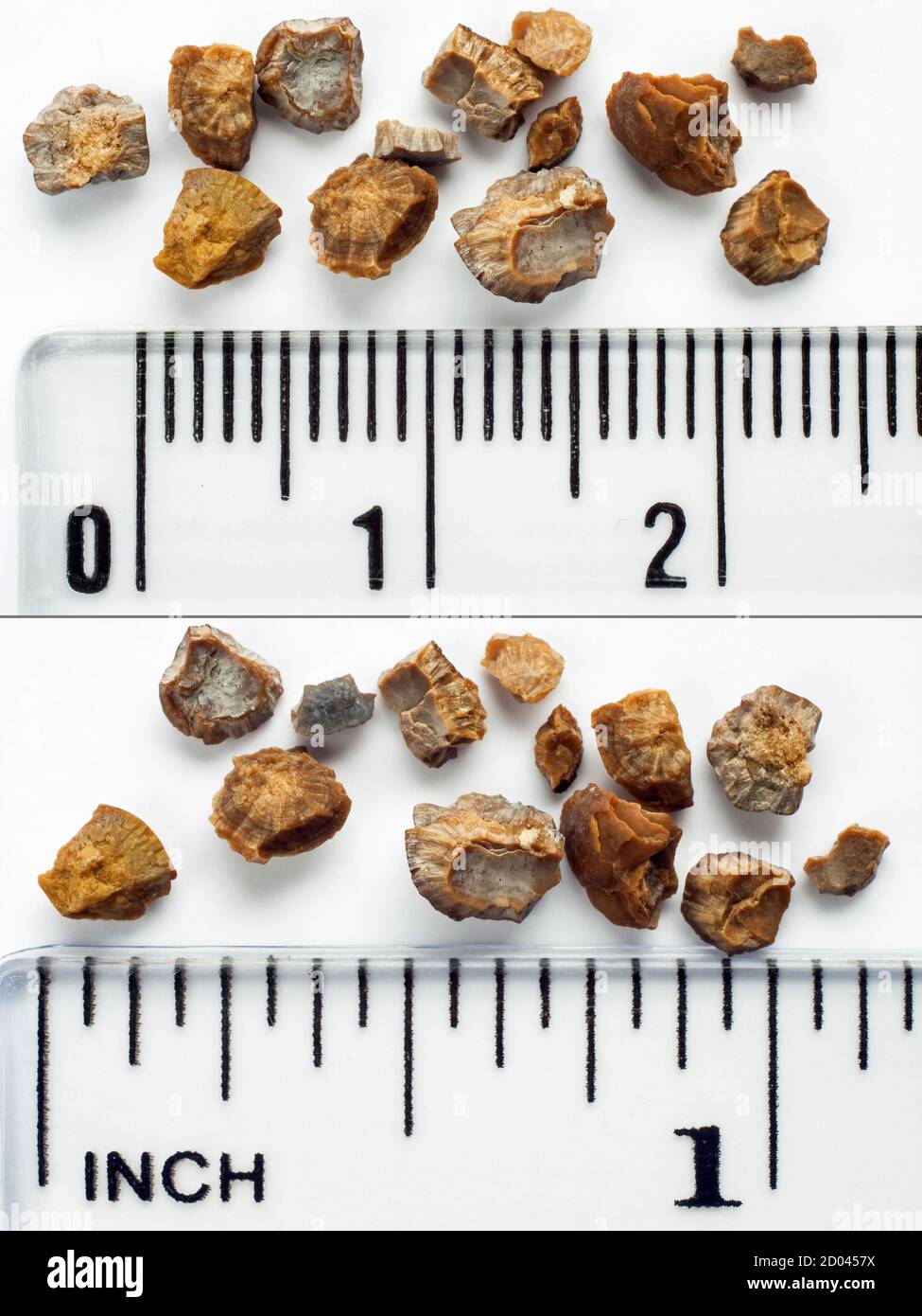 Fragments Of A Kidney Stone Kidney Stone Broken Up By Extracorporeal Shock Wave Lithotripsy Eswl Scale In Centimeters And Inches Stock Photo Alamy