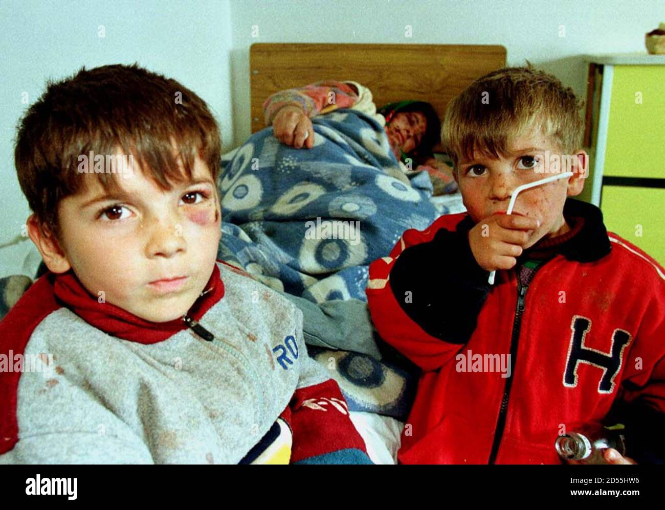 YUGOSLAVIA-KOSOVO-ALBANIA-REFUGEES:KUKES,ALBANIA,1APR99-Ethnic Albanian refugees from the village of Damnjane in Serbia's province of Kosovo, Yllka, 6, (L) and her four year old brother Ylli (R) sit at the bedside of their mother Besa Guci in Kukes hospital, Northern Albania, March 31. The family were injured by Serb granade schrapnel before they were expelled into Albania.  NSO/FMS Stock Photo
