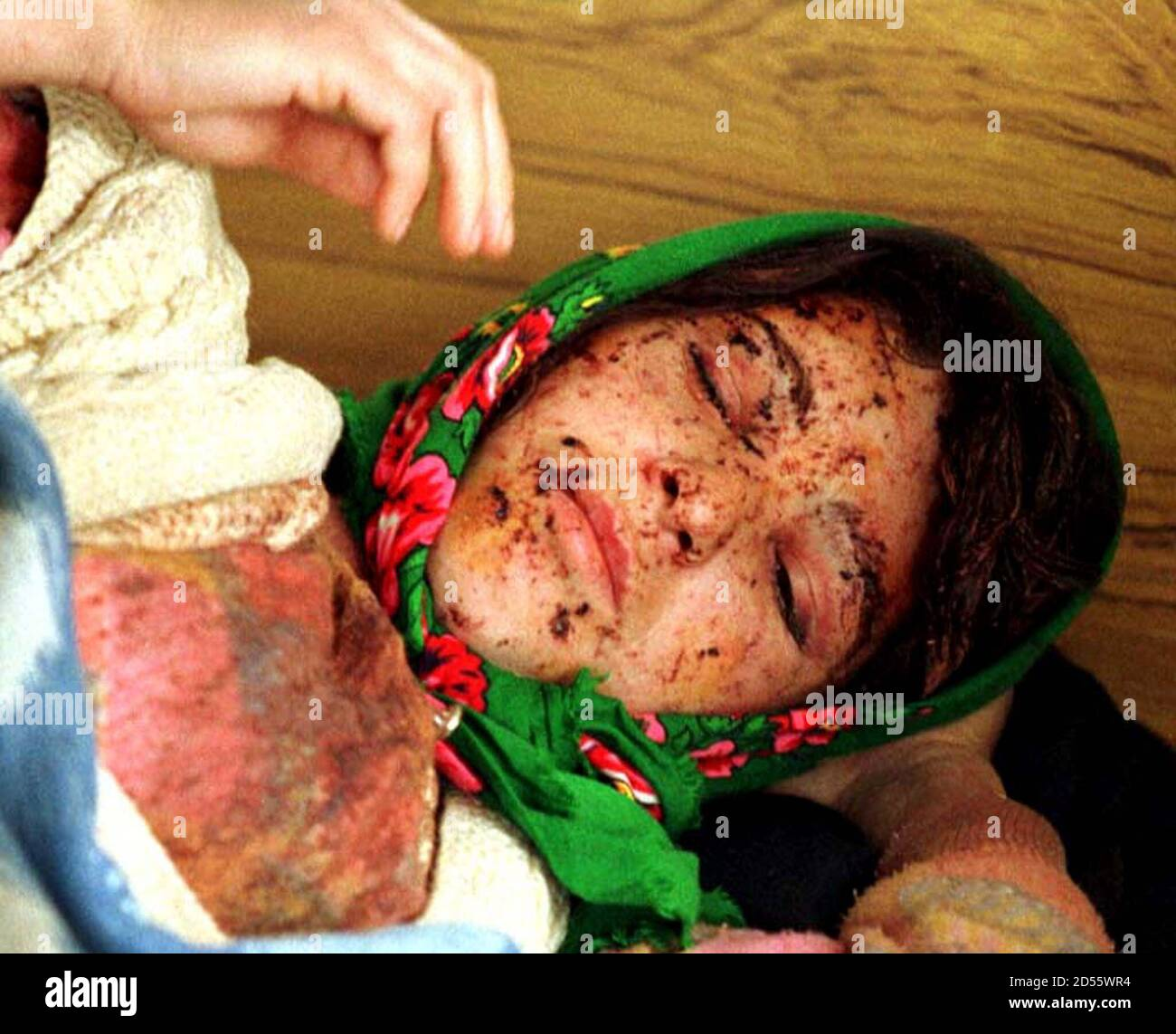 Besa Guci, an ethnic Albanian refugee from the village of Damnjane in the Serbian province of Kosovo, rests in Kukes hospital in northern Albania March 31. Guci says she was injured in the face by a Serbian grenade. Stock Photo