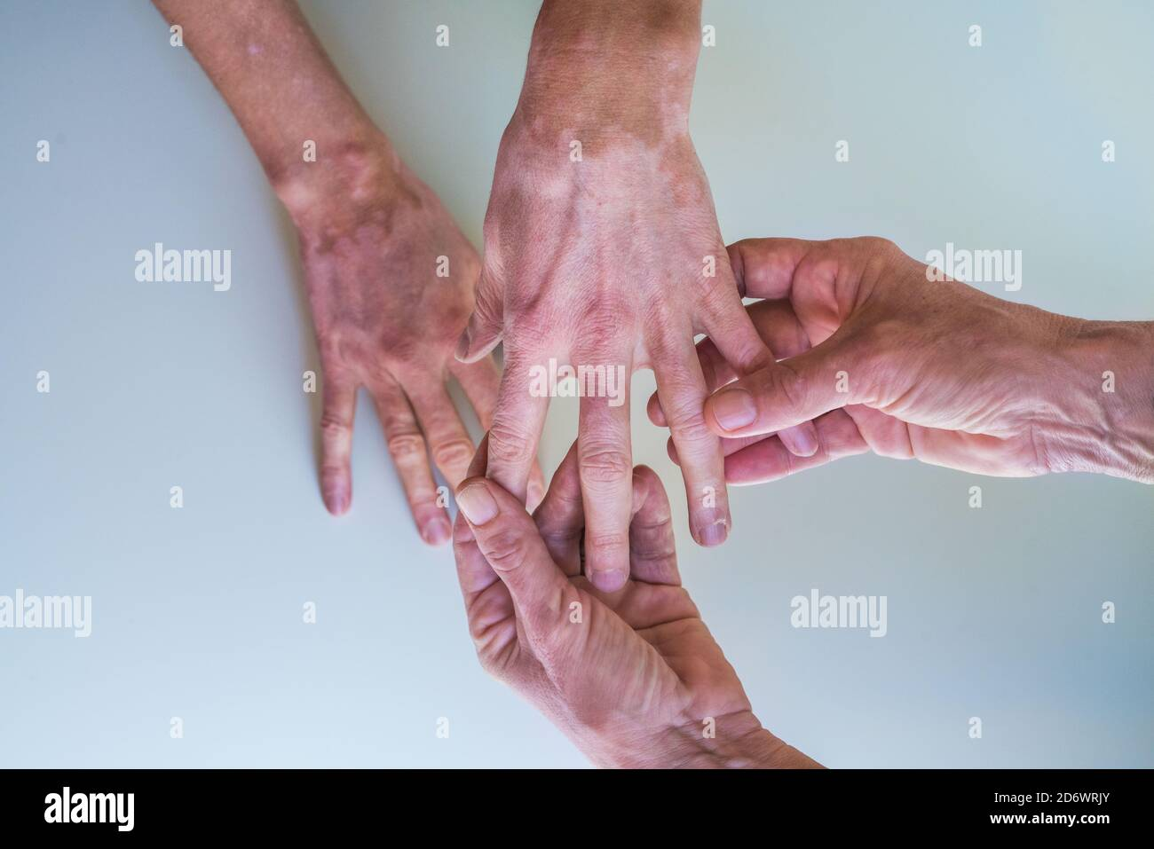 View Of Vitiligo Skin Pigment Loss In The Hands Of A 35 Year Old Woman Stock Photo Alamy