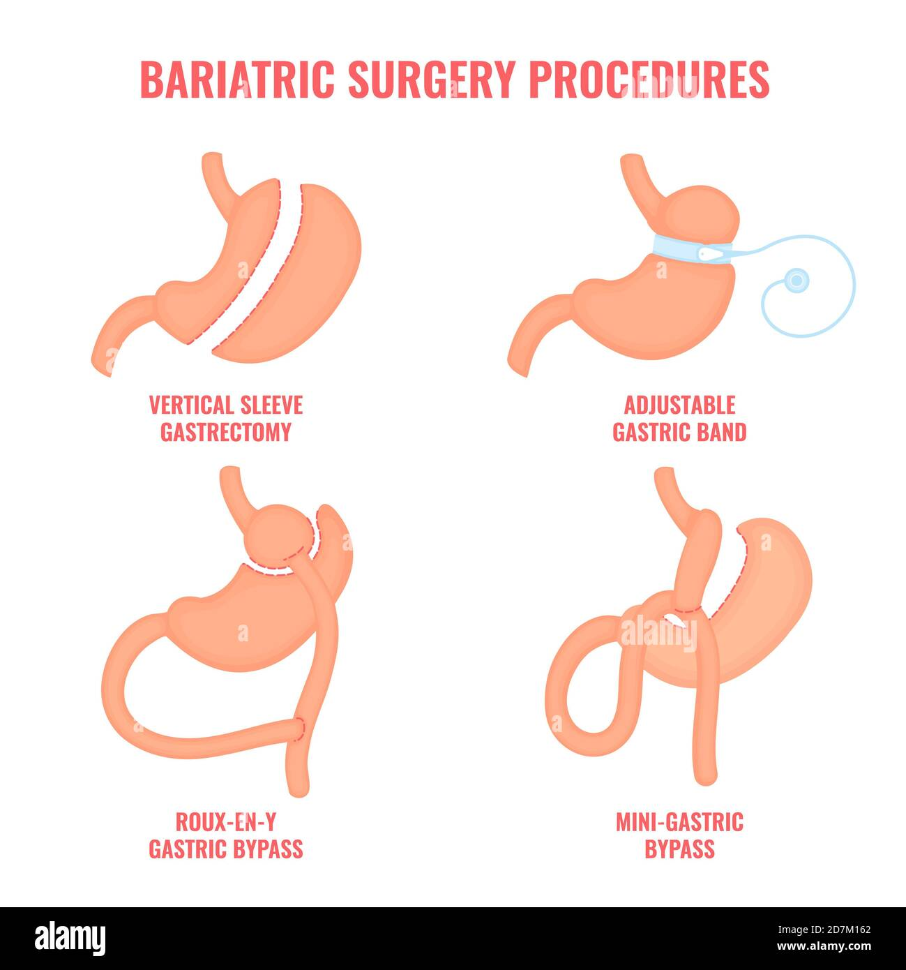 Bariatric surgery types, conceptual illustration. Types of weight loss surgery- gastric bypass, sleeve gastrectomy, and adjustable gastric band. Stock Photo