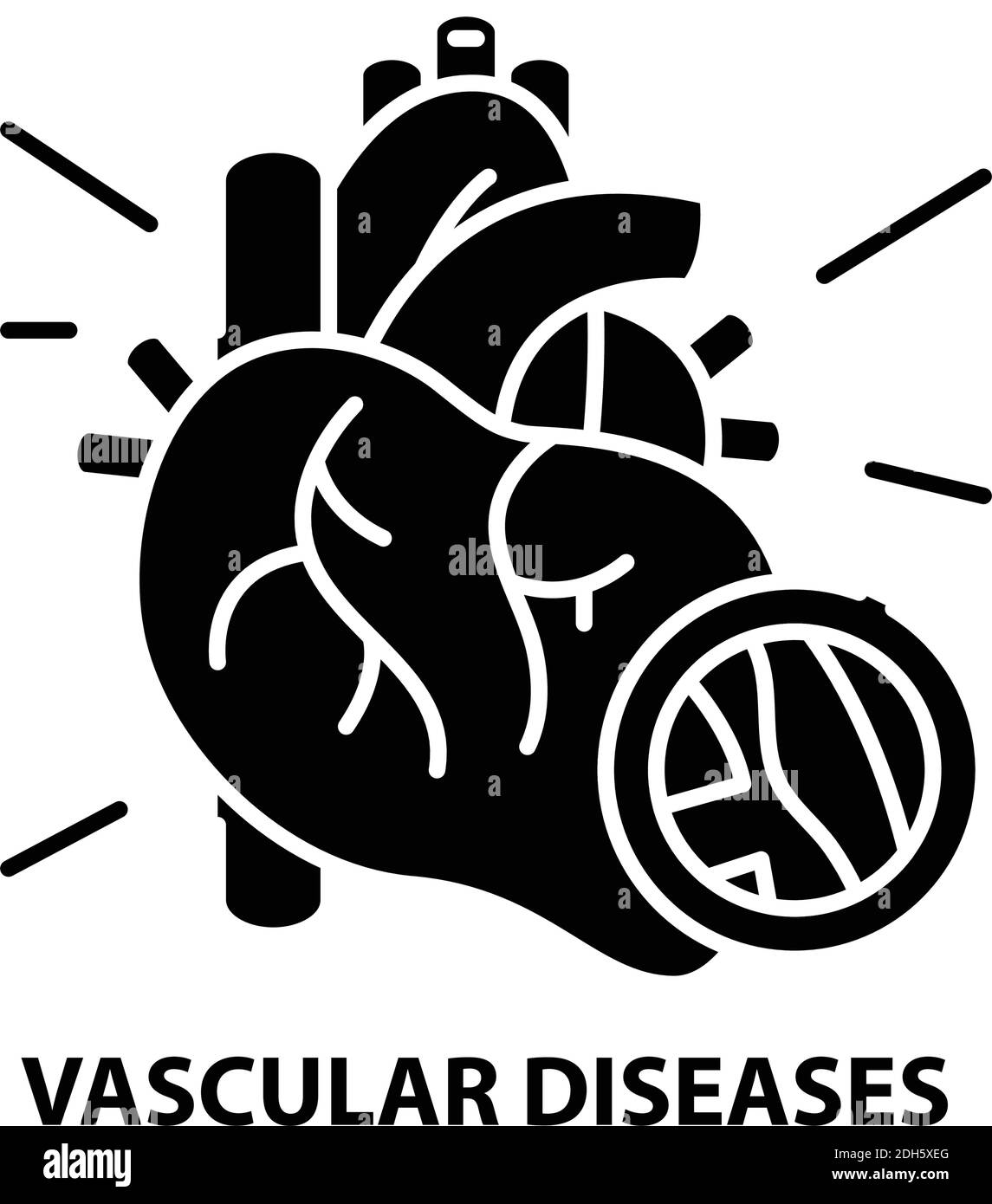 vascular diseases icon, black vector sign with editable strokes, concept illustration Stock Vector