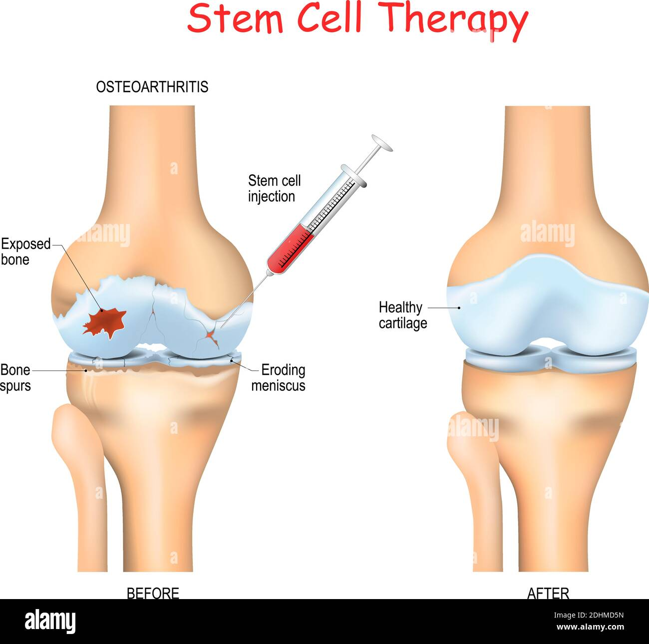 Stem Cell Therapy High Resolution Stock Photography And Images Alamy