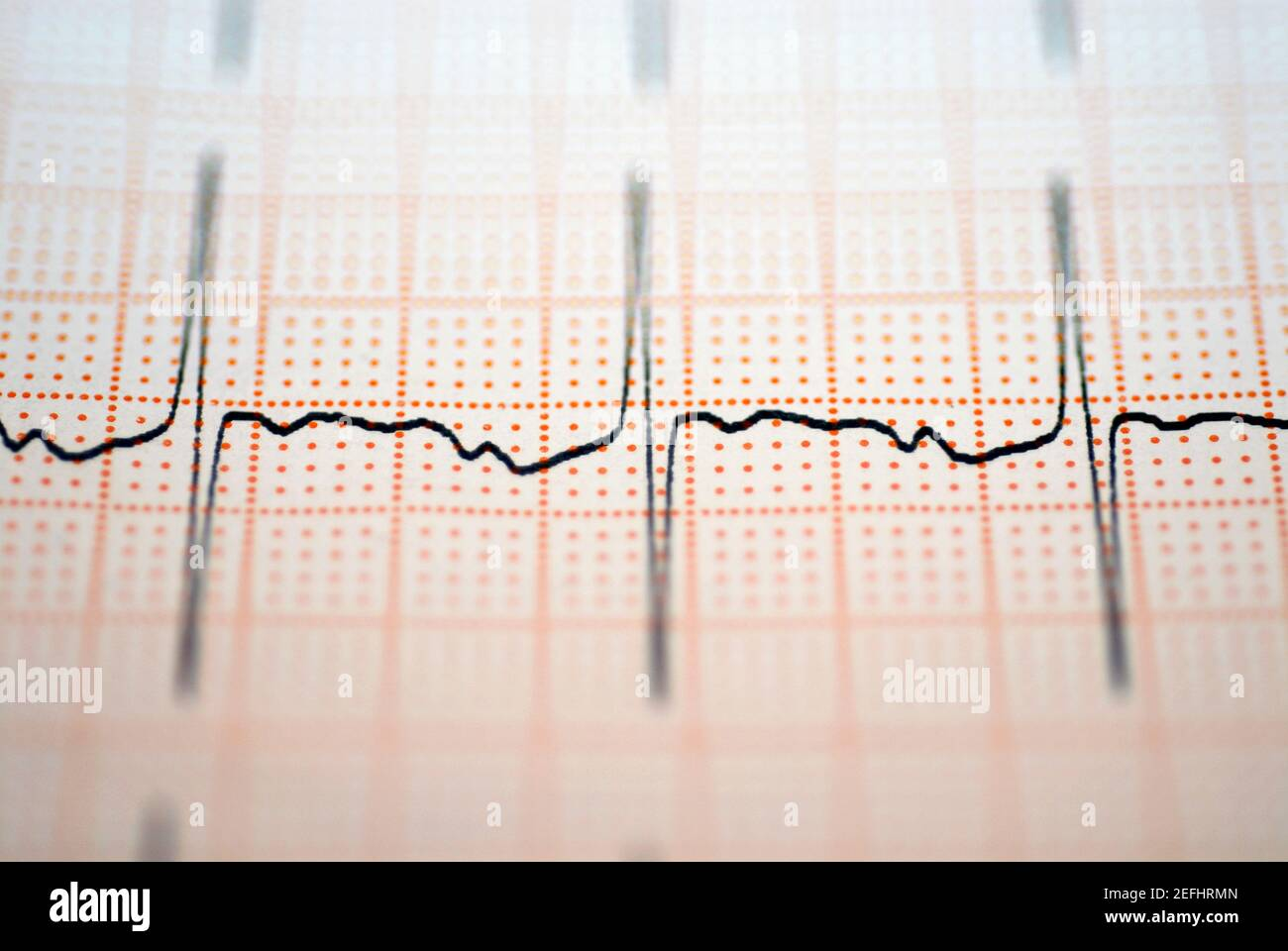 Close-up of an ECG report Stock Photo