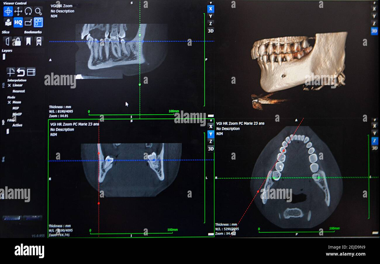 3D reconstruction from a CT image of a patient's jaw for personalized 3D printing. Stock Photo