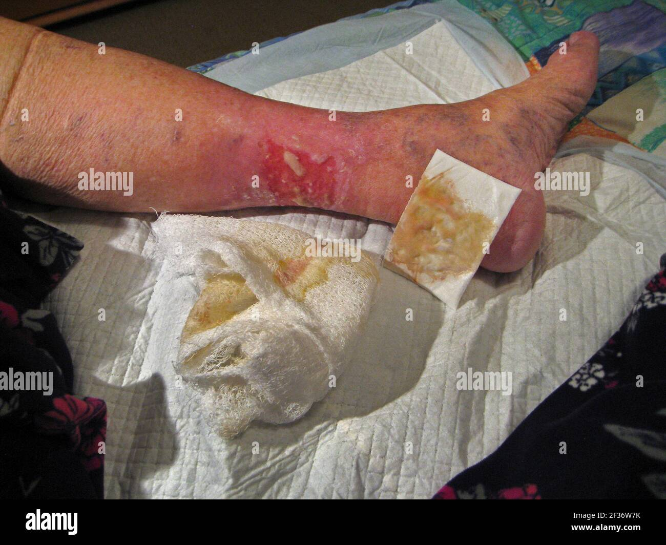 """Massive skin inflammation on the lower leg of an elderly Caucasian female is shown after a nonstick pad and cotton wrap bandaging are removed before the dressing is changed at a hospital Wound Center in Florida, USA. Known as """"stasis dermatitis,"""" this ugly and painful rash was caused by a buildup of fluid due to poor blood circulation in the lower legs that is common to some older adults, especially women. Symptoms of this medical condition include oozing and crusting open sores (ulcers), redness or other discoloration of the skin, swelling and itching. Healing can take considerable time. Stock Photo"""