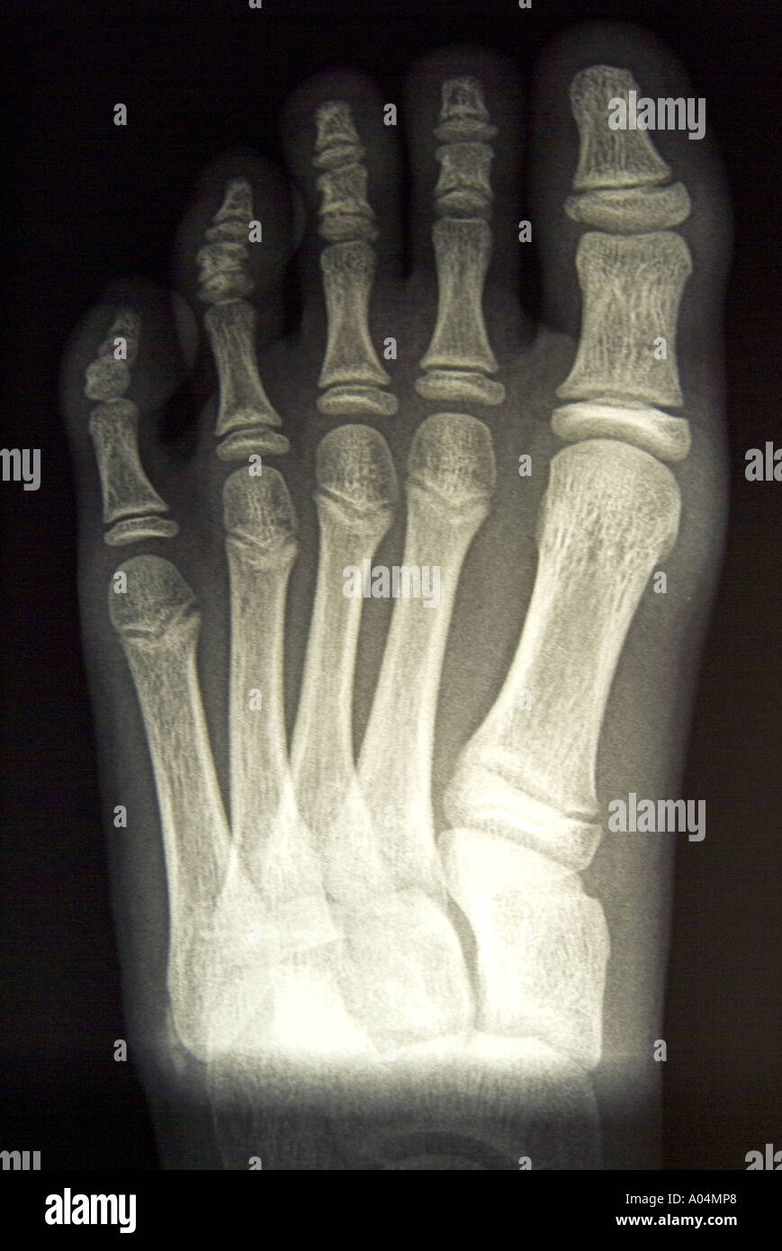 x ray of healthy 9 year old girl s left foot - Stock Image