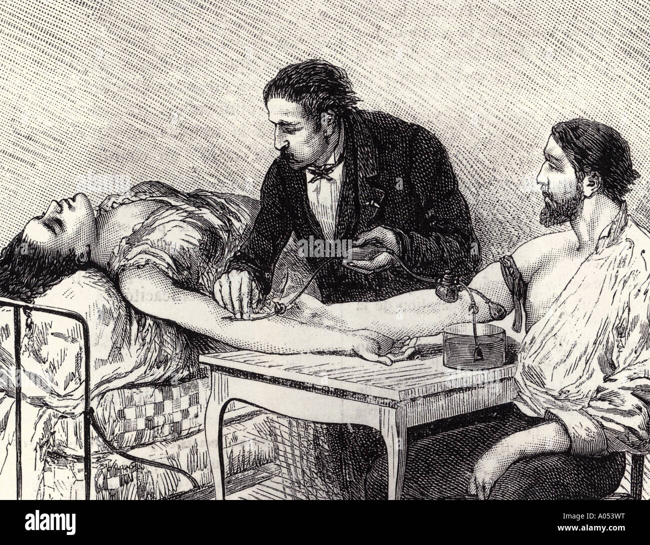 BLOOD TRANSFUSION engraving of a direct, peron to person transfusion in 1882 - see Description below - Stock Image