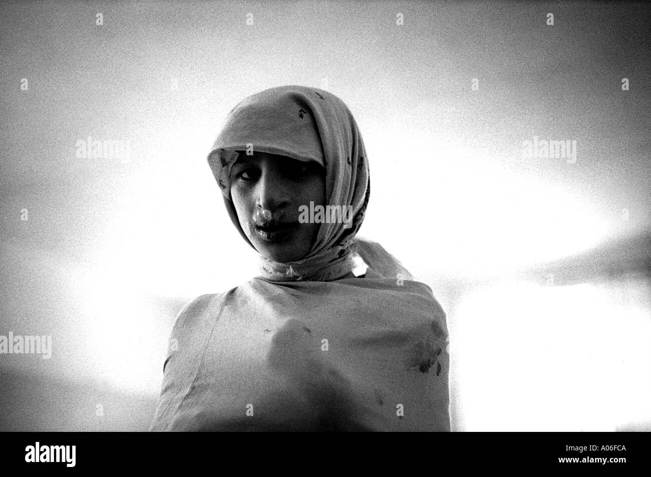 Girl in a straight jacket at a psychiatric clinic in Kiev, Ukraine.  She was born with mental defects after Chernobyl disaste - Stock Image