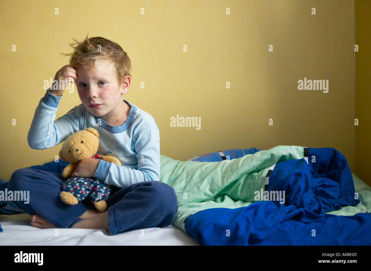 Young boy sick with chicken pox on his bed DEU GERMANY Stock Photo