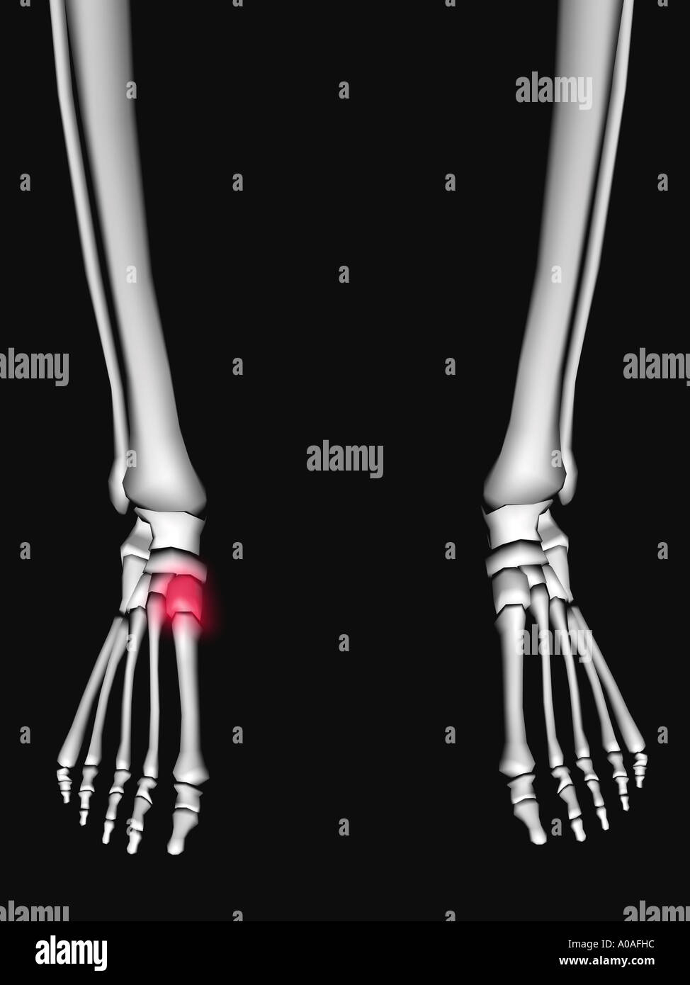 Illustrative diagram showing skeleton showing tarsal highlighted in a red glow - Stock Image