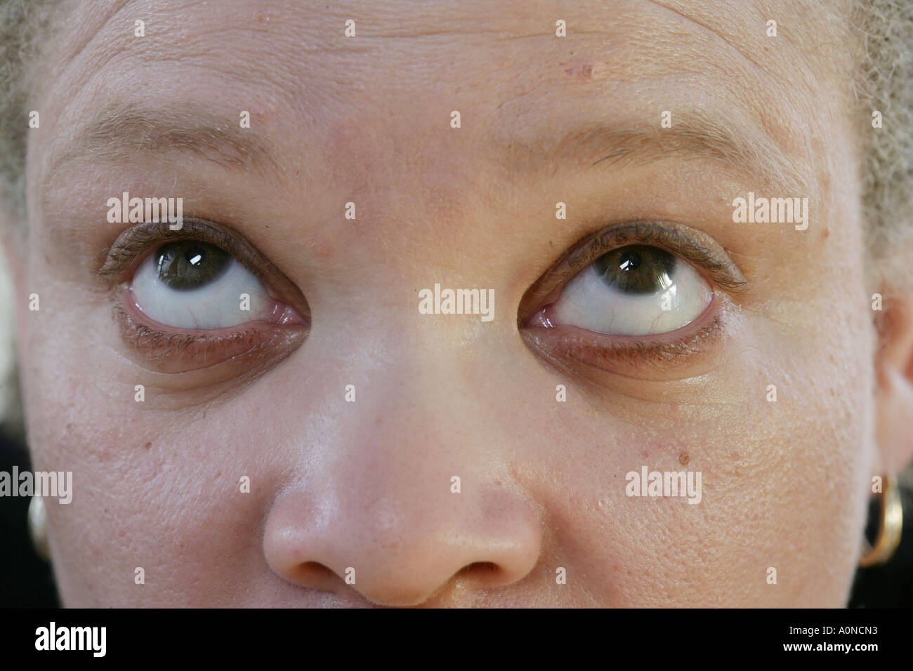 Part of a series of nine gaze positions.Search on CMSP NYSTAGMUS to see the entire serices. - Stock Image