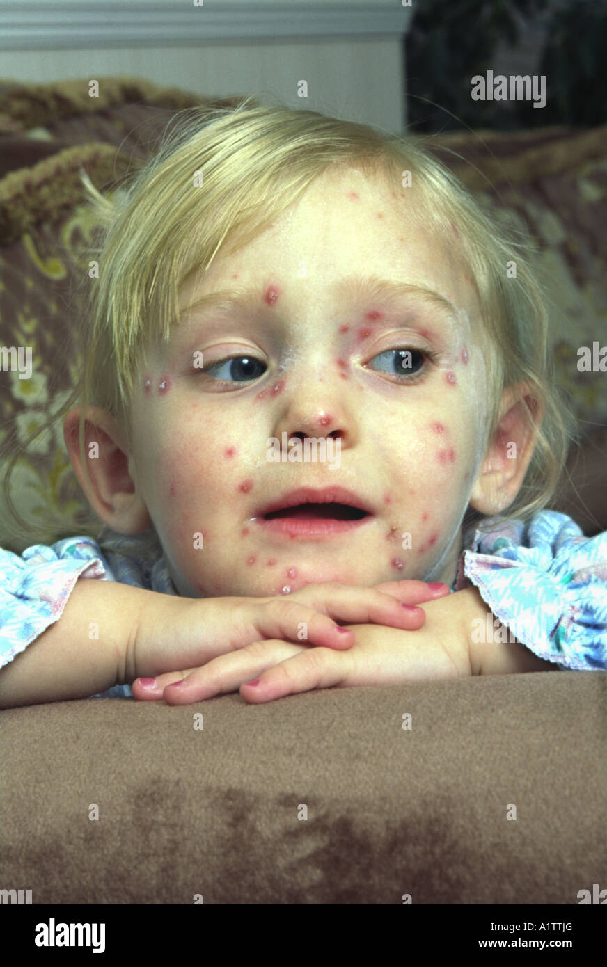 Young female child suffering with Chickenpox - Stock Image