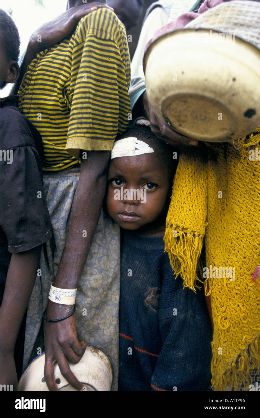 CHILD WITH HEAD WOUND STANDING IN QUEUE OF REFUGEES  HOLDING BOWLS KIGALI AIRPORT RWANDA 1997 - Stock Image