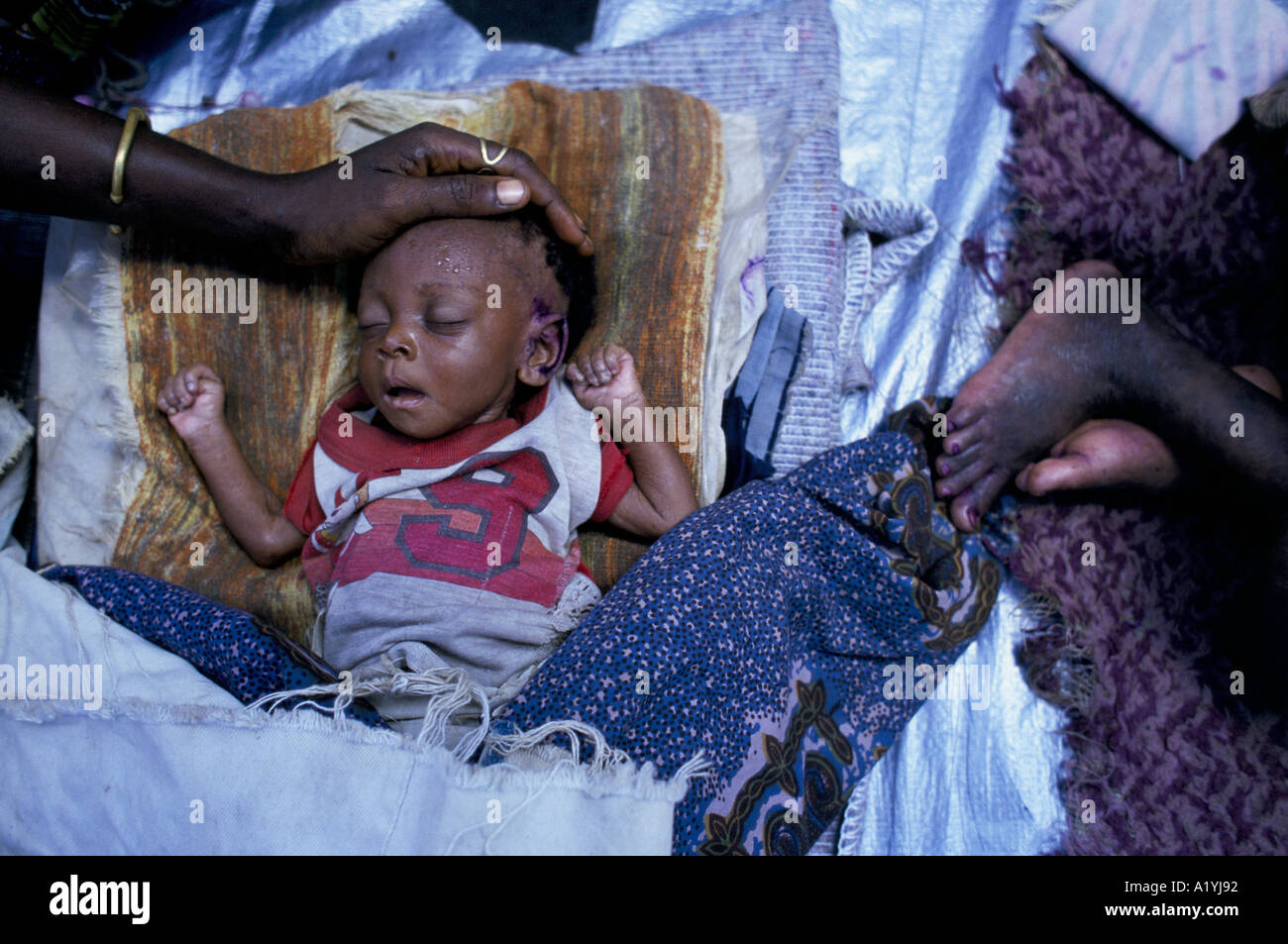 MALNOURISHED BABY AT OXFAM FEEDING CENTRE IN SINJE LIBERIA OCTOBER 1996 1996 - Stock Image