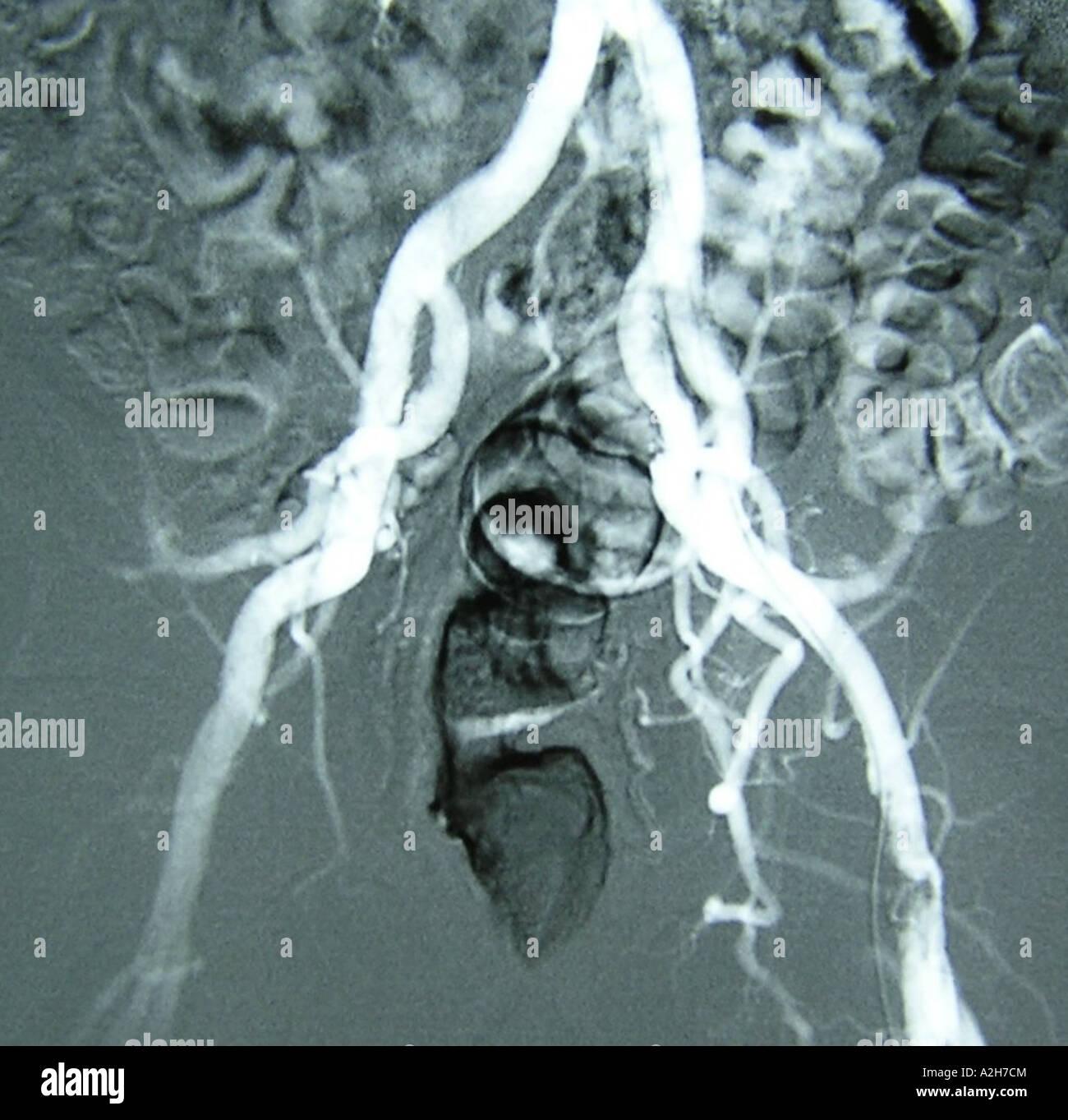 Intestines Image - Stock Image