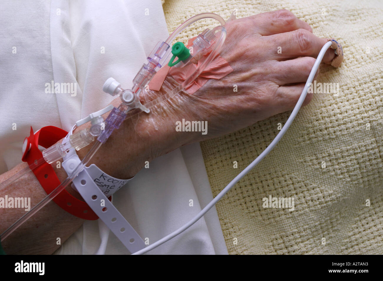 An elderly female patient's hand prepared for surgery at the Royal Brompton hospital, London, 2005. - Stock Image