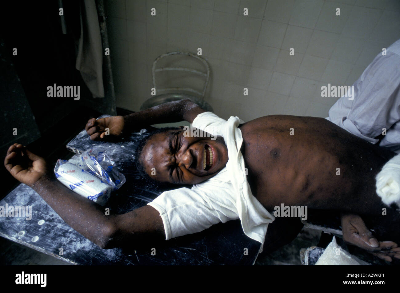 angola oct 1993 man in agony hit by a mortar bomb cuito - Stock Image