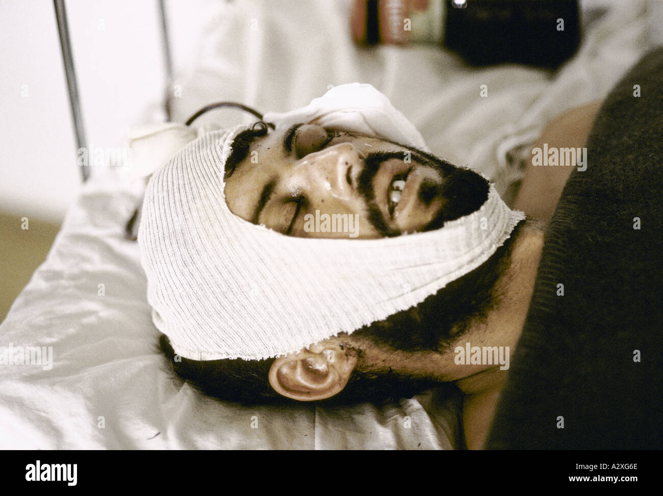 Socolitz, Bosnia, Sept 1992: wounded Bosnian Serb soldiers under treatment in Socolitz hospital. Stock Photo