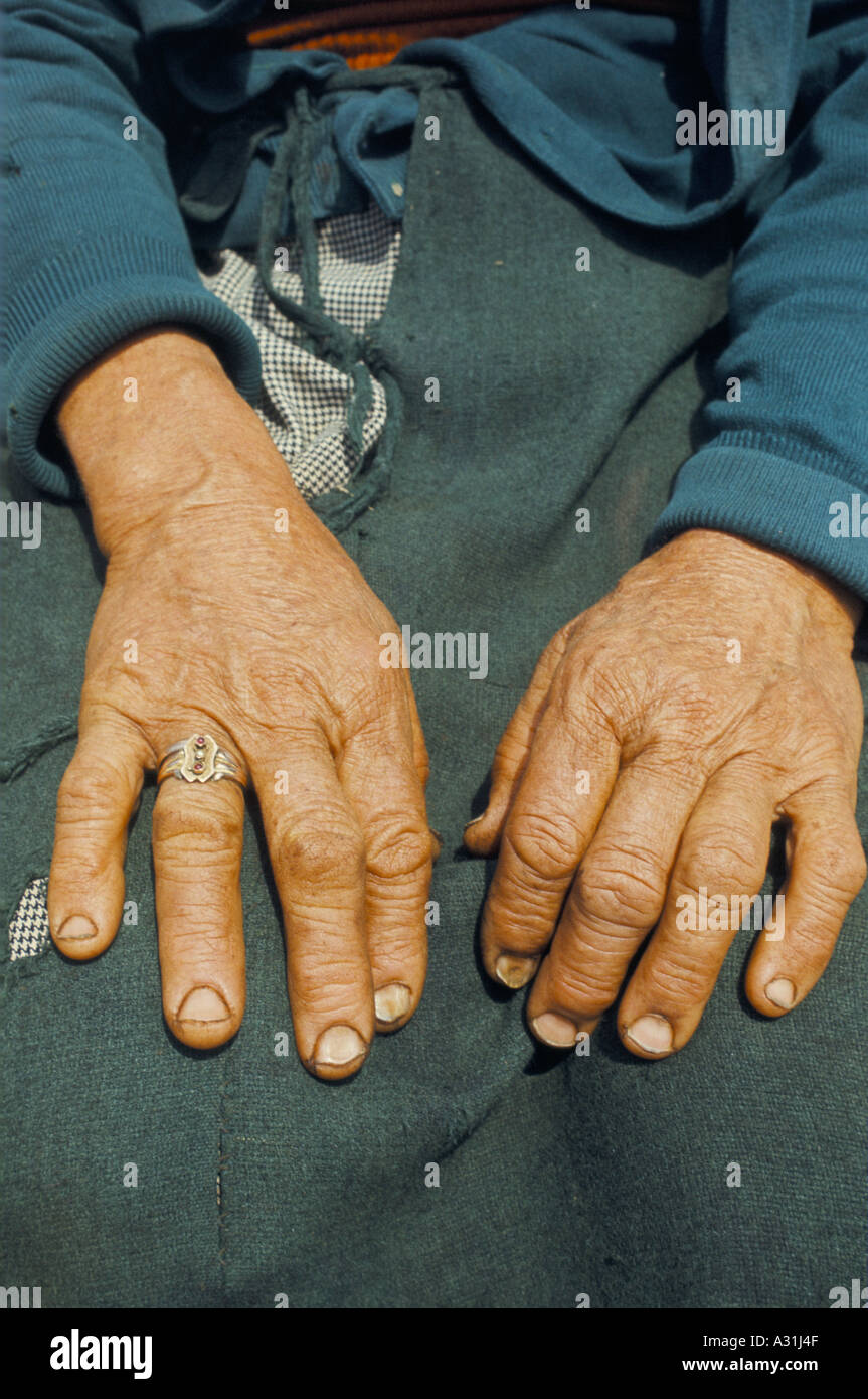 close up of old lady s hands ring on finger wrinkles lines rough ...