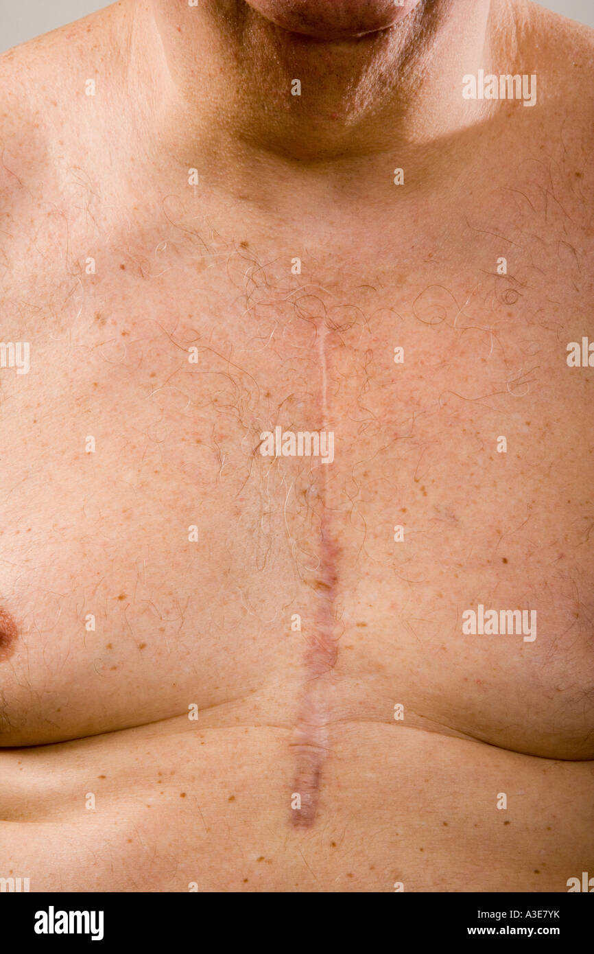 Open heart surgery scar on man's chest. - Stock Image