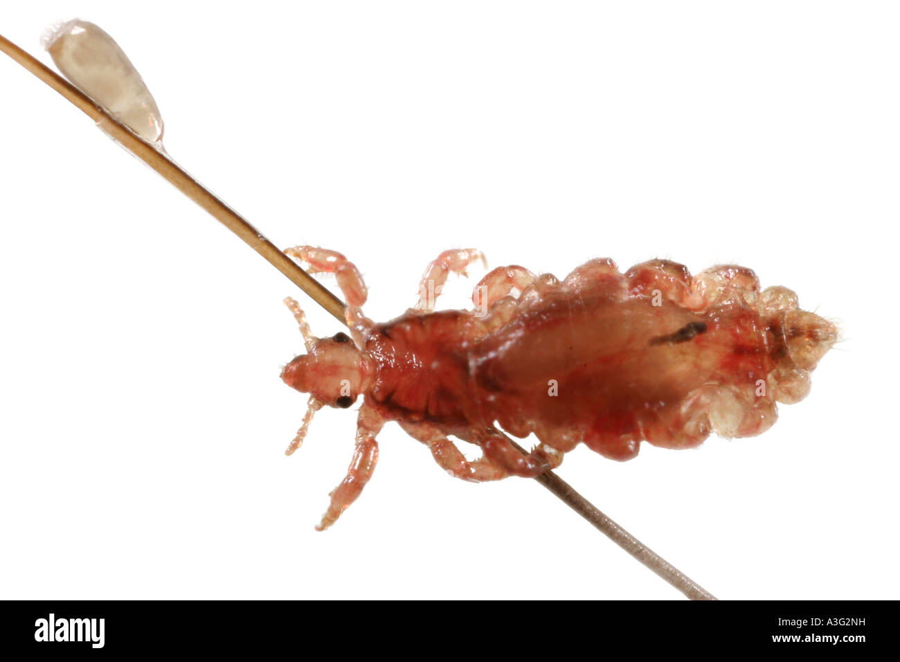 A living hair louse and egg on human hair. Stock Photo