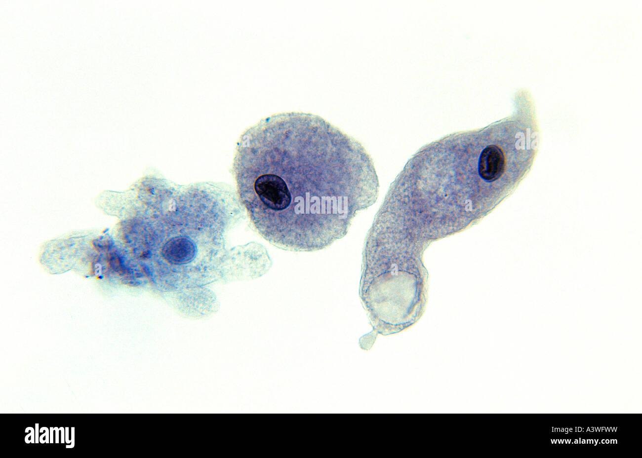 amoeba microscopic photographic technique united kingdom stock photo