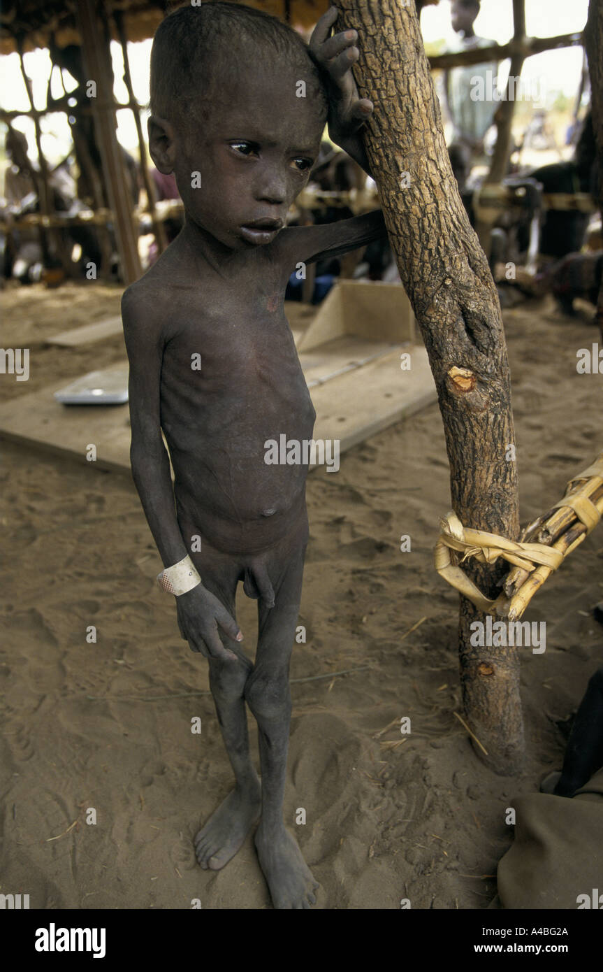 famine southern sudan medicine sans frontier clinic malnorished boy waits for treatment - Stock Image