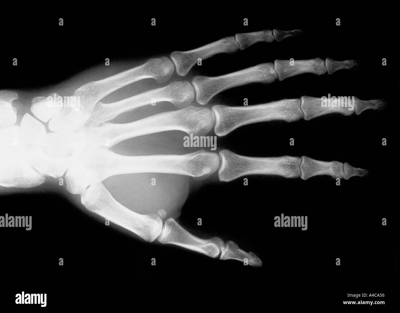 X-ray image of hand - Stock Image