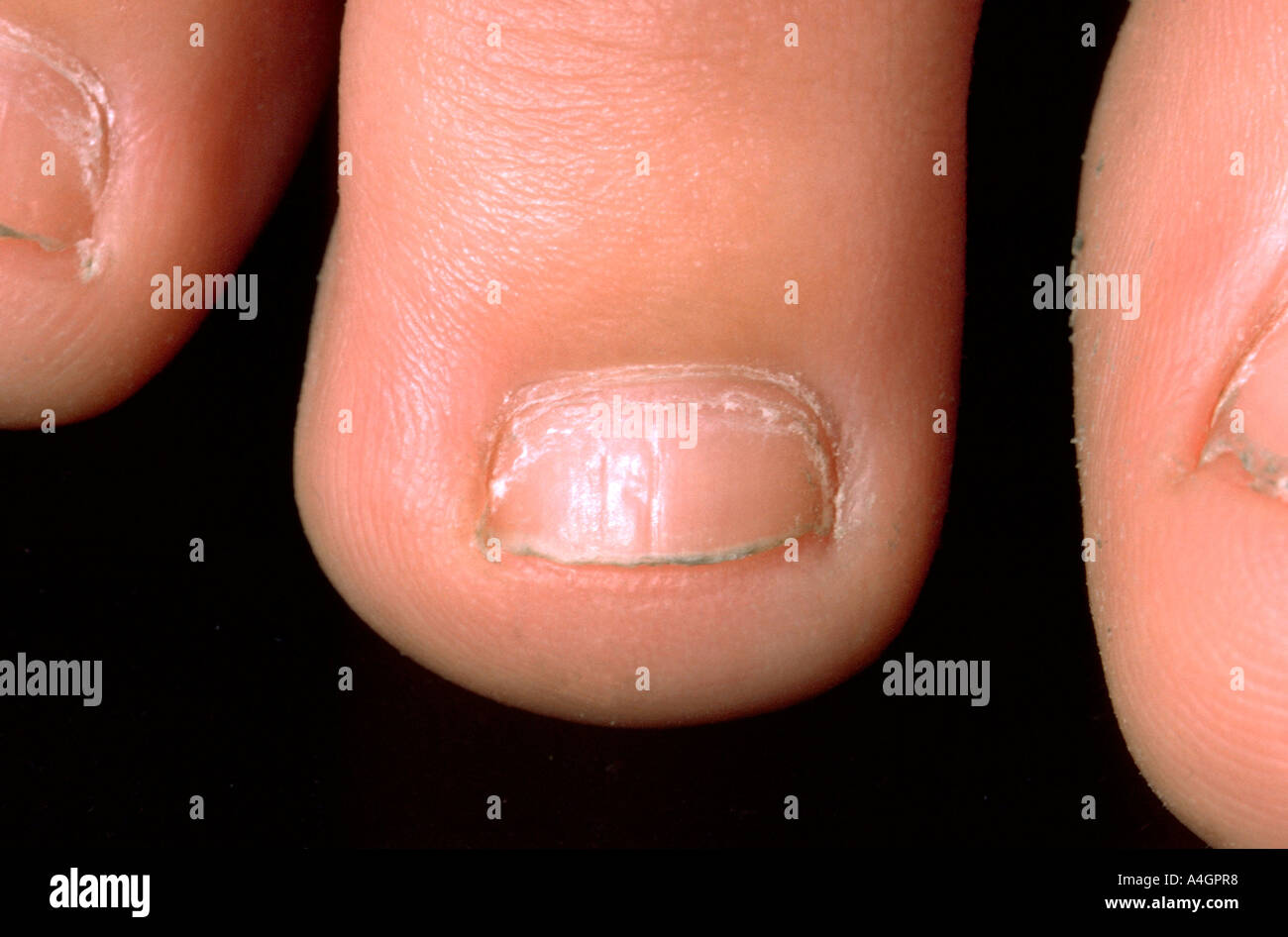 Nail pitting Stock Photo: 6312183 - Alamy