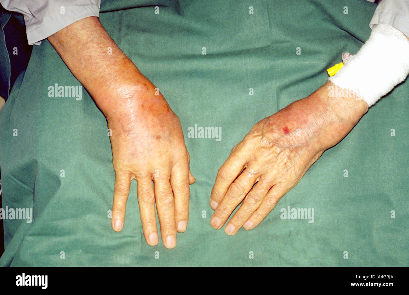 Septic Arthritis High Resolution Stock Photography And Images Alamy