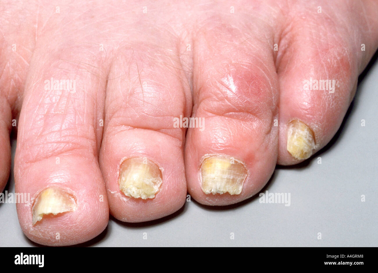 Thickened Toenails Stock Photos & Thickened Toenails Stock Images ...