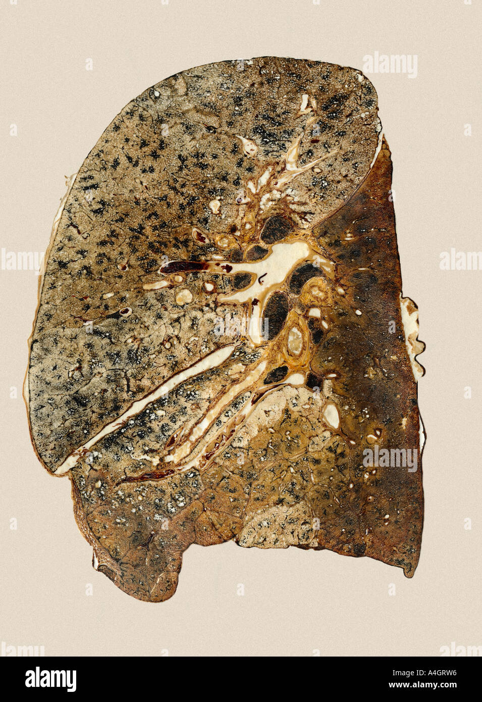 Part of the Gough-Wentworth collection. A lung section from a patient who died from hypostatic pneumonia - Stock Image