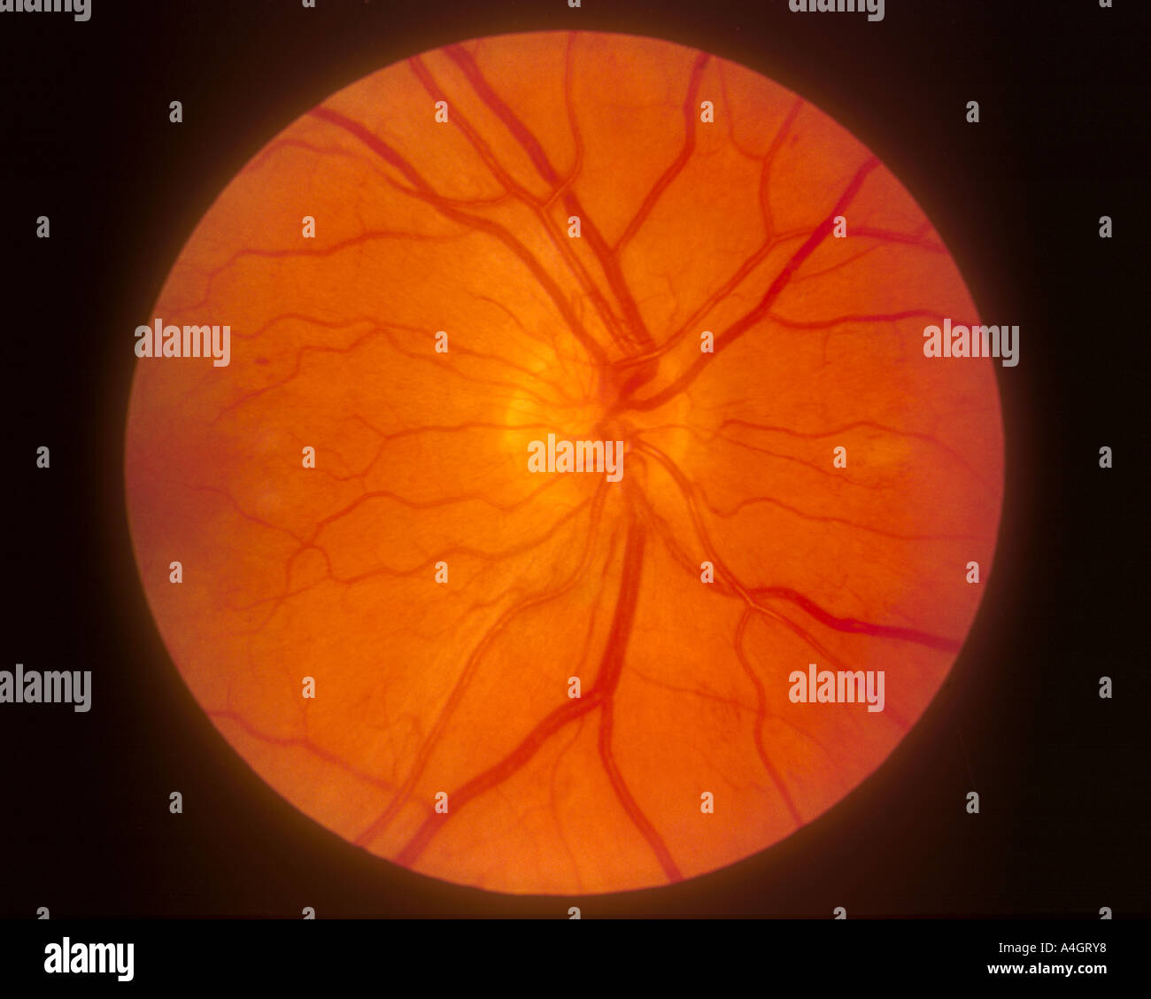 A retinal photograph showing diabetic retinopathy and new vessels disc (NVD) - Stock Image