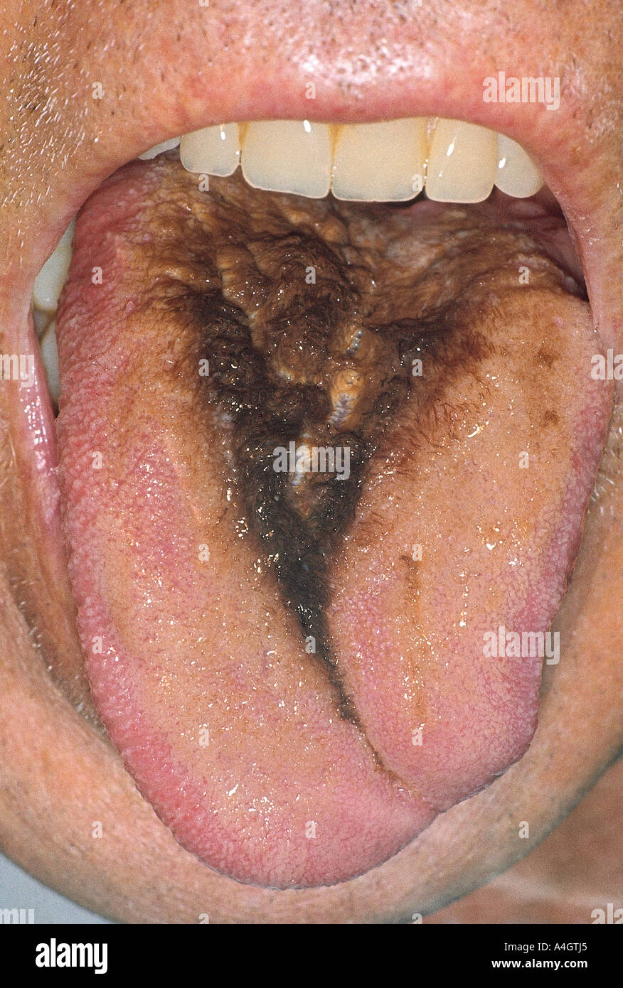 This guy previously had oral cancer which was treated with a skin graft