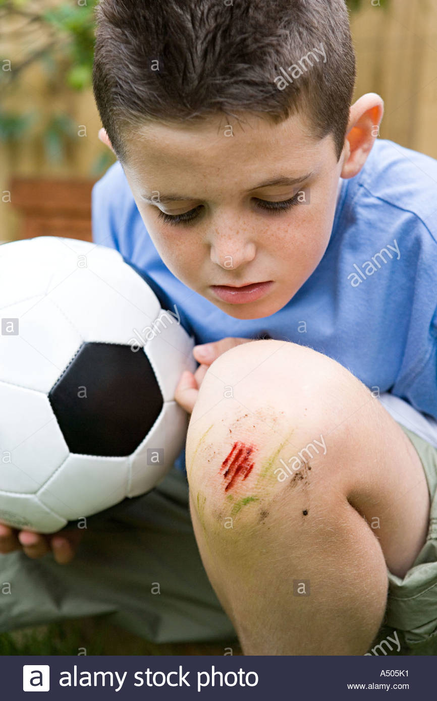 Boy with grazed knee - Stock Image