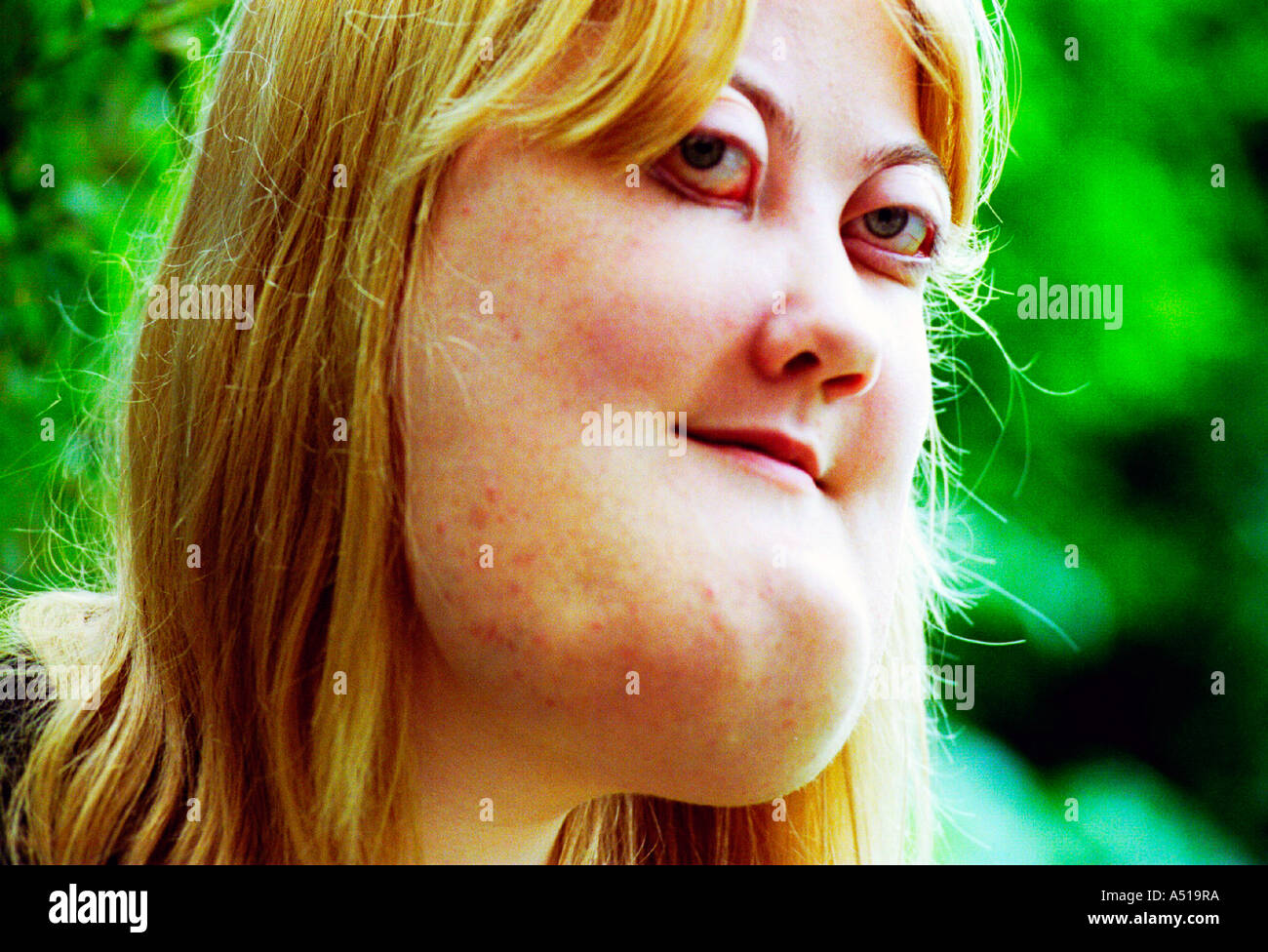 A young woman with cherubism.  The rare genetic condition  is a hereditary  form of  polyostotic fibrous dysplasia. Stock Photo