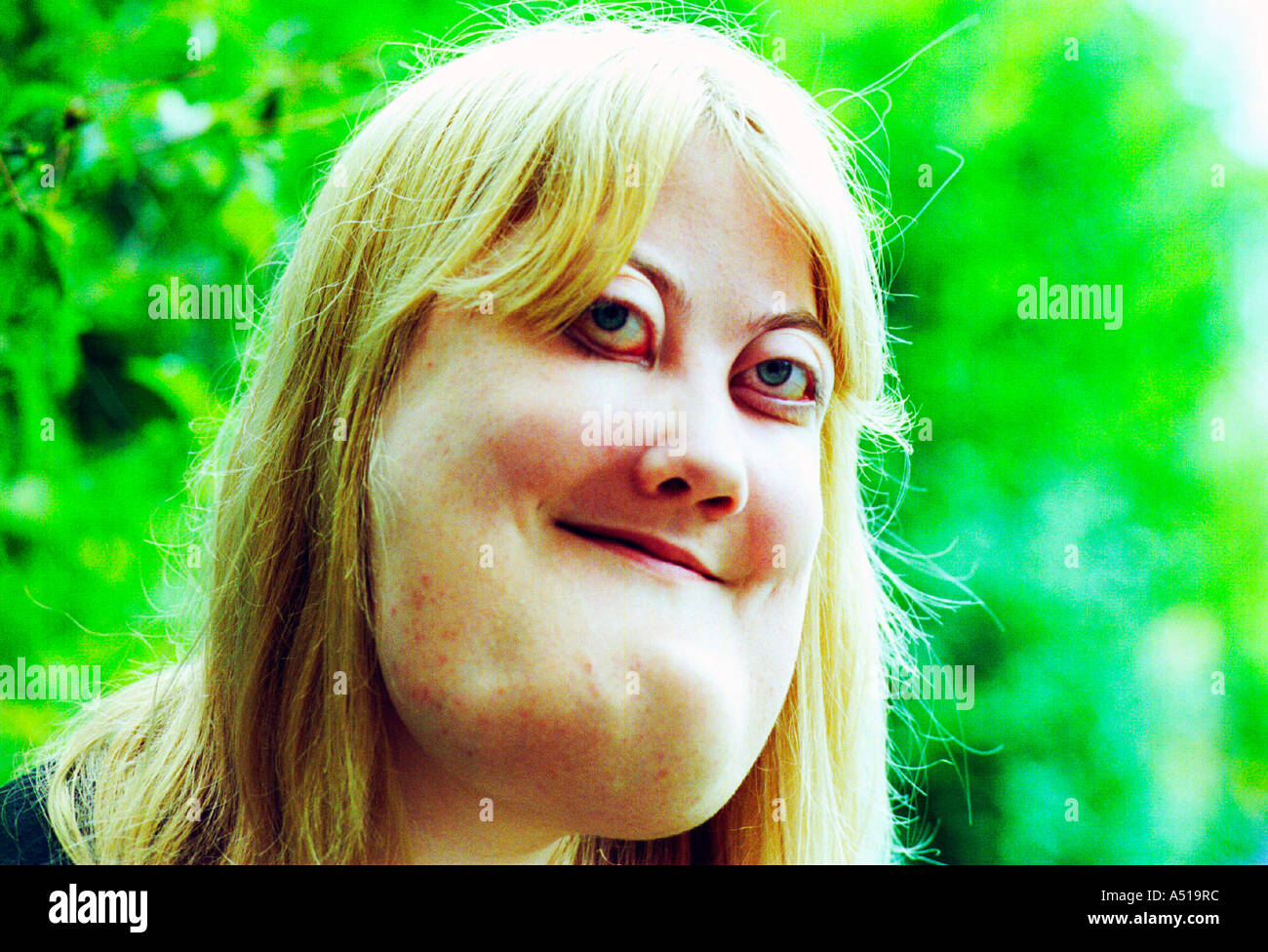 A young woman with cherubism.  The rare genetic condition  is a hereditary  form of  polyostotic fibrous dysplasia. - Stock Image
