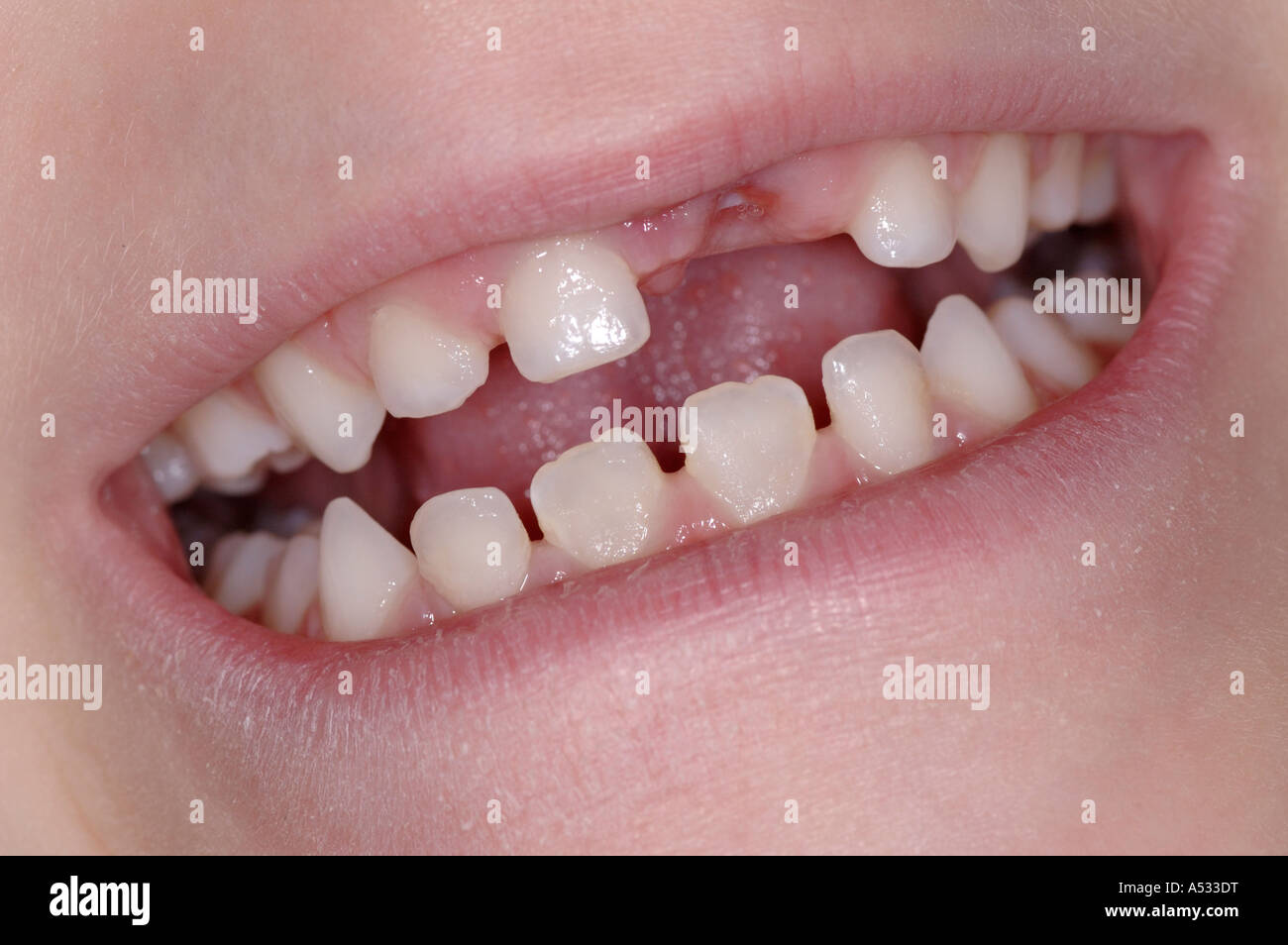 Smile with recently missing front tooth - Stock Image