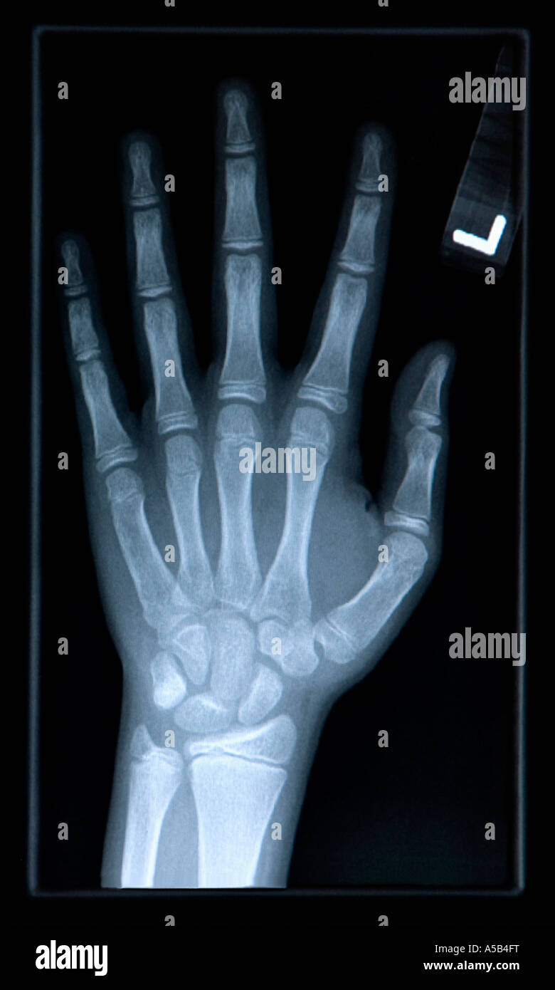 Close-up of xray of hand. - Stock Image