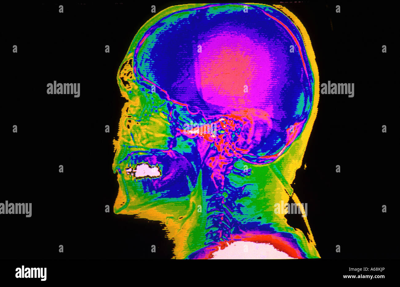 Color Ct Scan Lateral Skull Stock Photos & Color Ct Scan Lateral ...