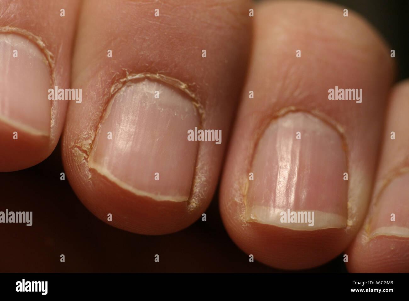 Dry Cracked Fingers Stock Photo: 6590530 - Alamy