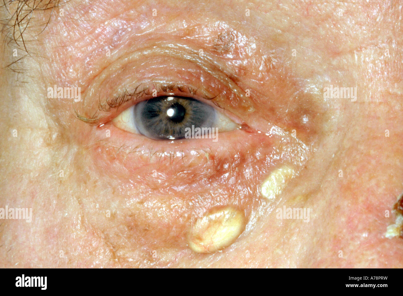 Xanthelasma palpebrarum - Stock Image