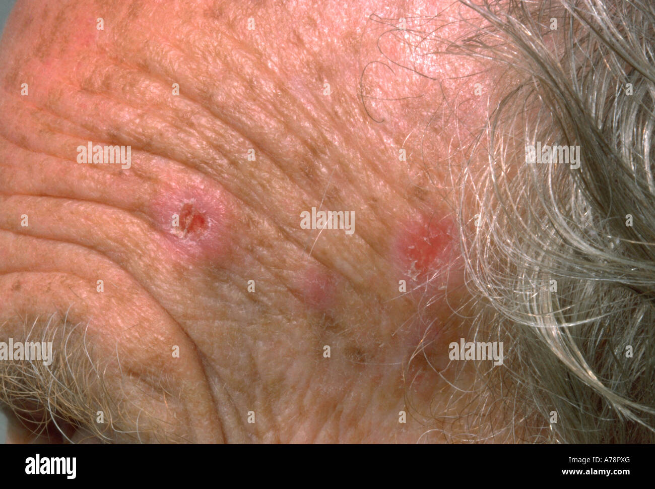 Actinic keratosis Stock Photo: 11761431 - Alamy