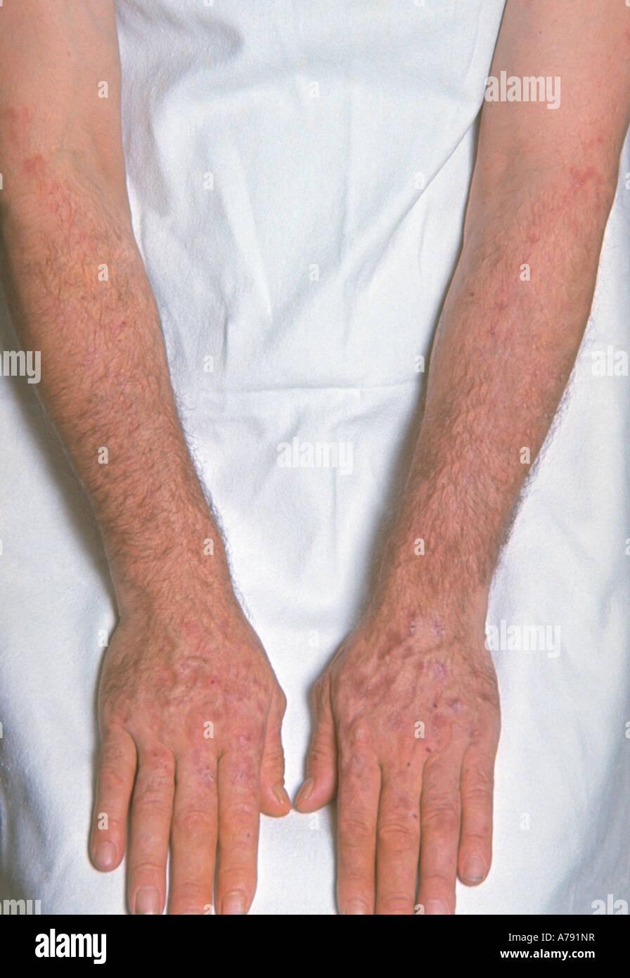 Pictures cutanea tarda porphyria
