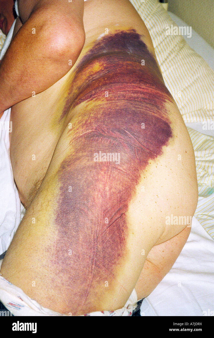elderly man in a hospital after a motorbike accident, enormous hematoma in the lumbar region and on the thigh - Stock Image