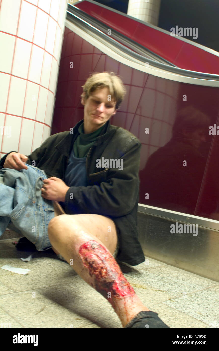 Addict And Hiv Positiv With Open Wound In Hamburg Underground