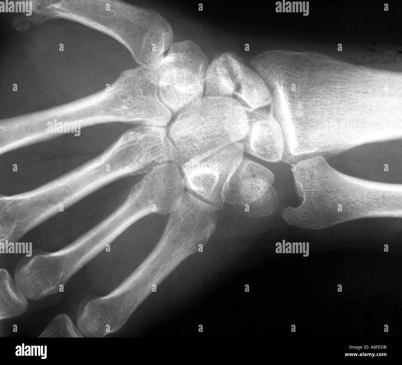 fractured scaphoid - Stock Image