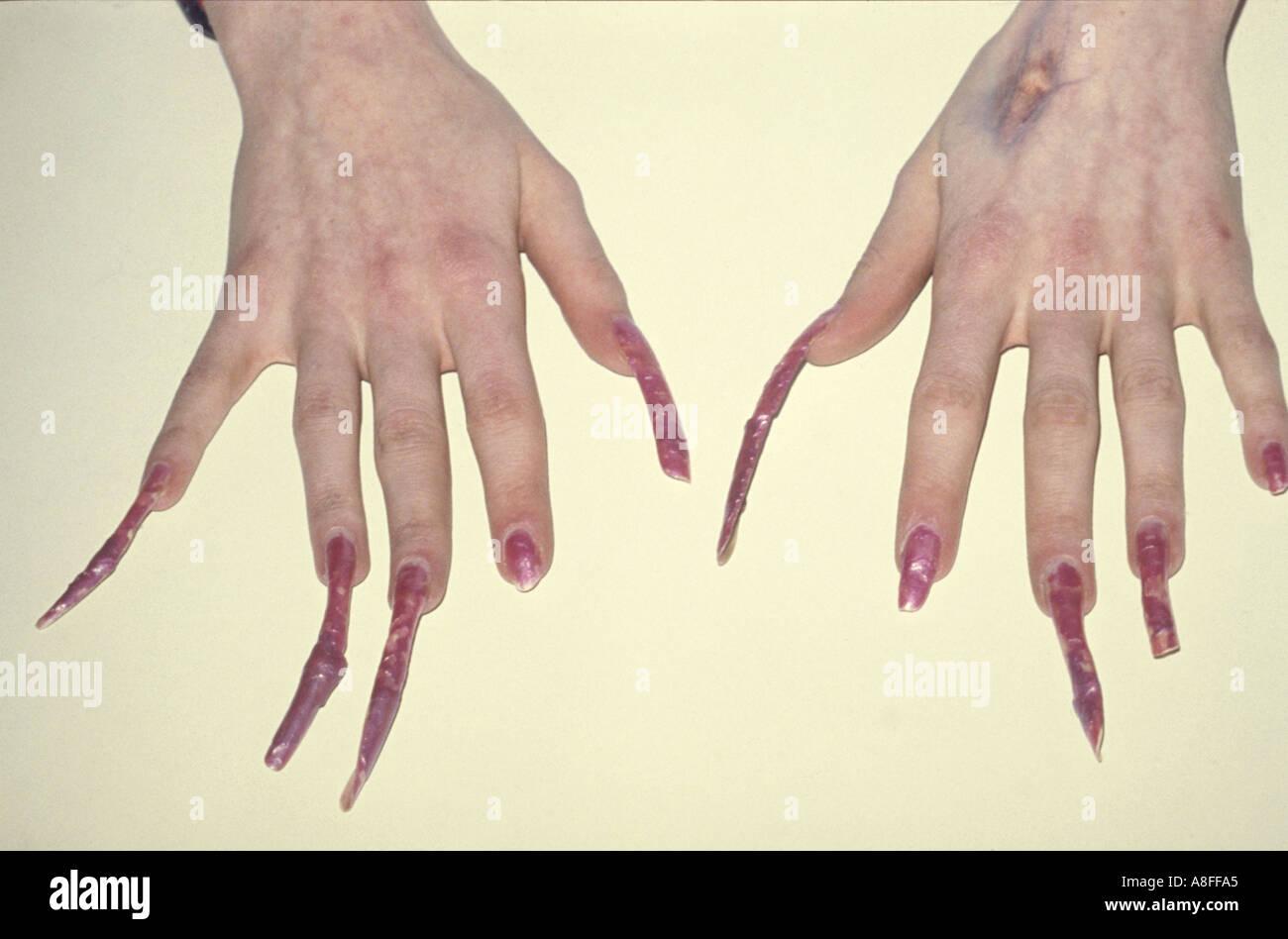 Long nails Stock Photo: 589733 - Alamy